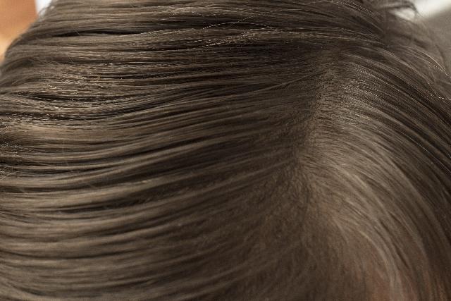 若い女性の薄毛の原因、対策記事の説明用画像